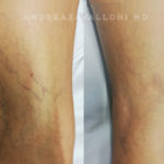 leau_poliambulatorio_blog_vascolare_02.18